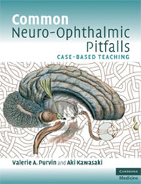 Common Neuro-ophthalmic pitfalls